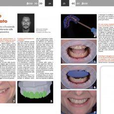 Articolo-Italian-Dental-Journal